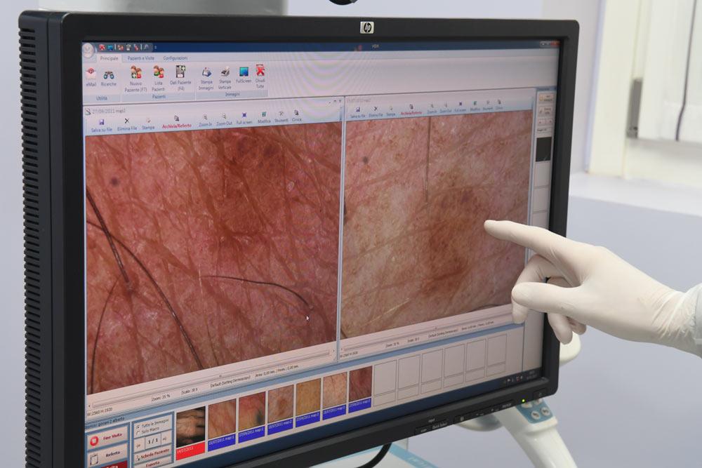 mappatura nevi dermatologia oncologica milano
