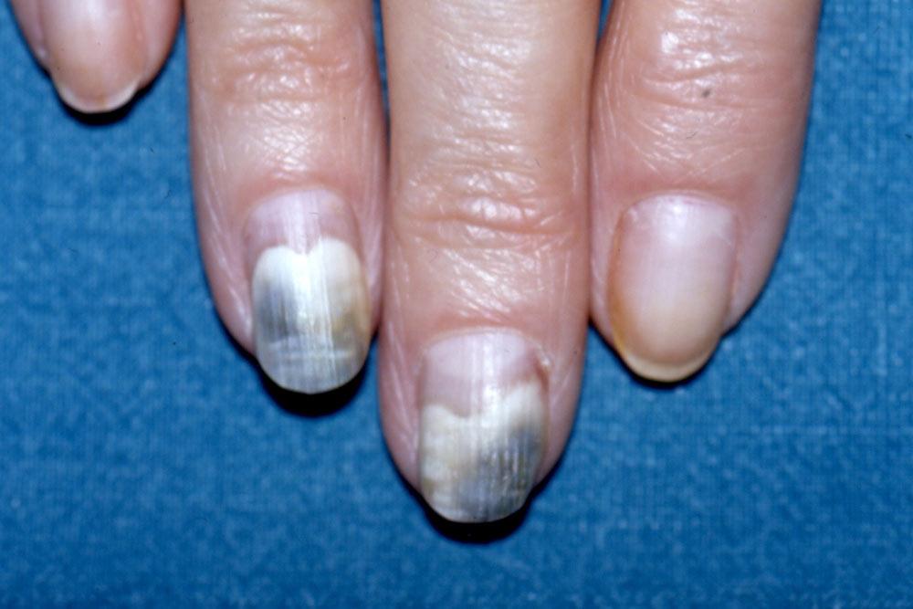 esame clinico dermatoscopico patologia ungueale 2