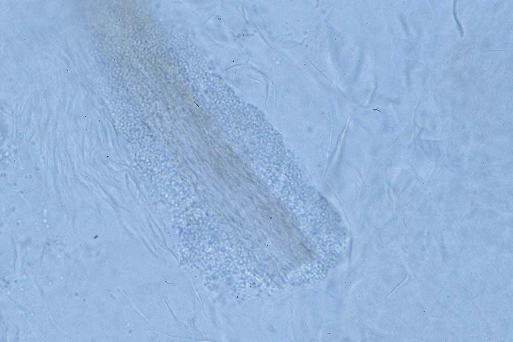 esame microscopico micologia