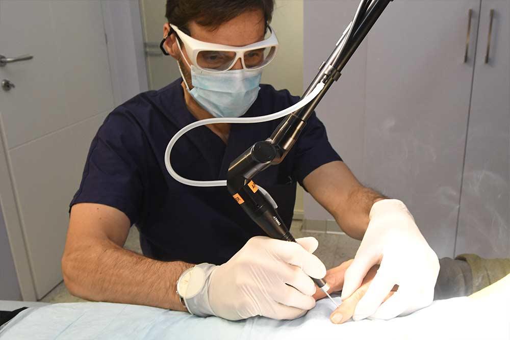 asportazione neoformazioni benigne con laser co2