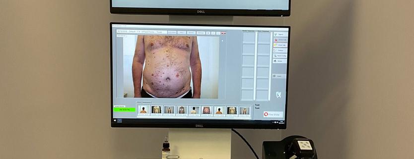 Mappatura Nevi Videodermatoscopia